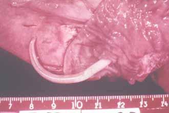 паразиты тканях человека